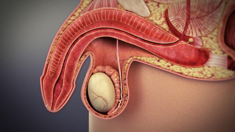 ¿Cuáles son las principales causas de la disfunción eréctil?